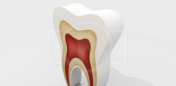 Карієс зуба - причини, стадії, лікування