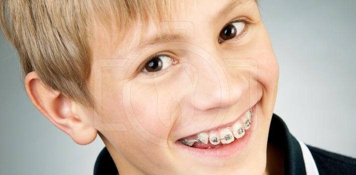 Брекети в дитячому віці