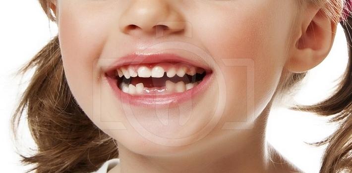 Видалення молочних зубів